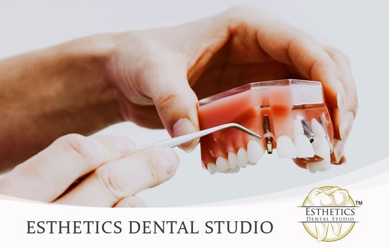 Case Study for Esthetics Dental Studio